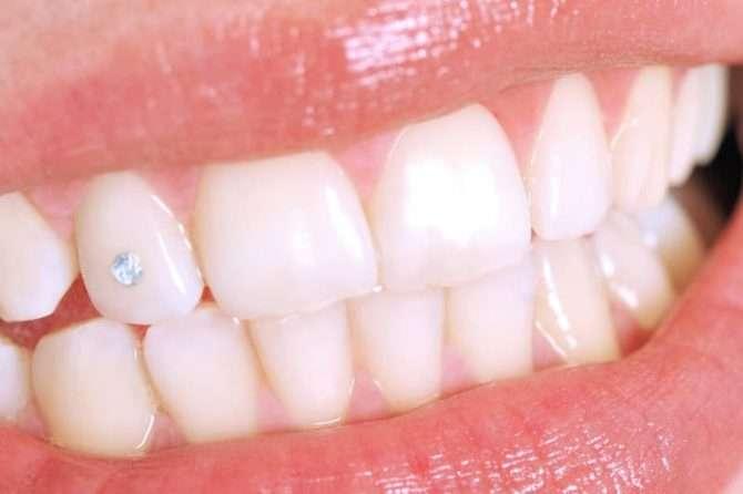 Bling-Bling: Zahnschmuck für gesunde, gepflegte Zähne 1